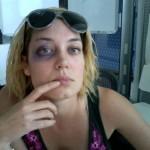 black_eye